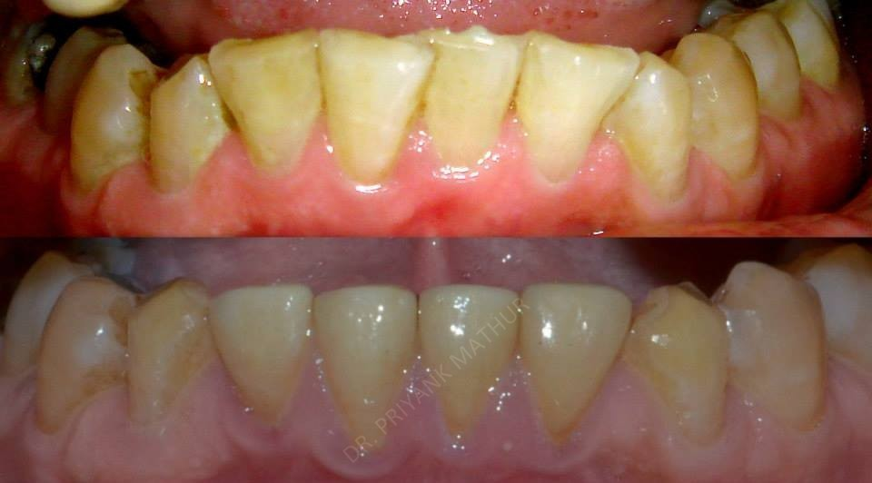 Treatment For A Reverse Smile 4 Smilekraft Dentistry
