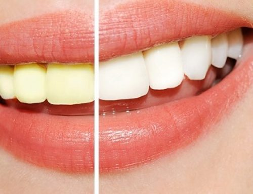 Thinking of tooth whitening?
