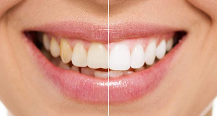 Smile Makeover in Pune