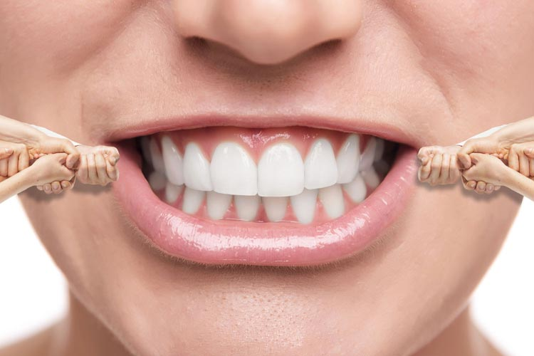 Three Truths About Invisalign Braces Smilekraft Dentistry