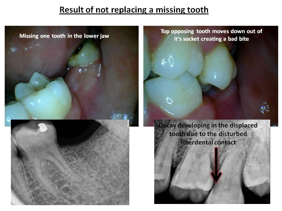 Restorative Dentistry in Pune
