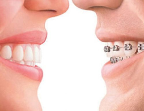 Braces v/s Invisalign : Know the Difference