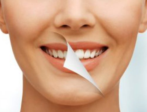 Looking for a smile makeover? Get one in India!