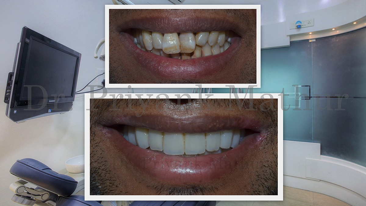 all teeth replacement with teeth implants
