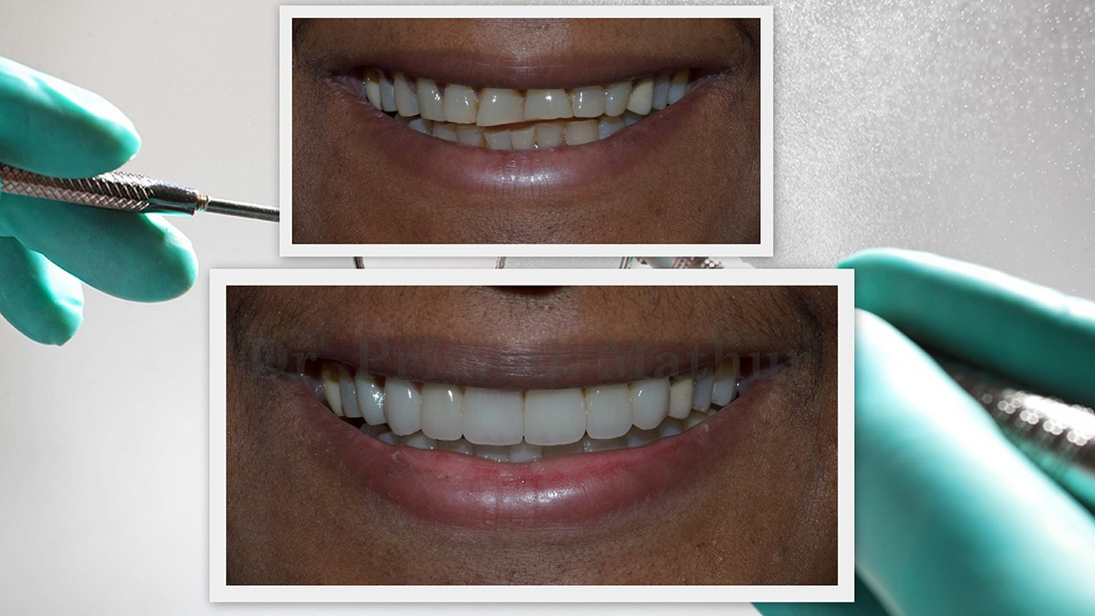Best Dental Clinic, Cosmetic and Implant Dentist in Pune, India