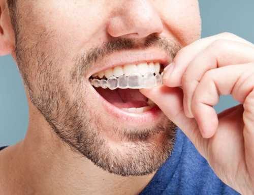 Considering straighter teeth? Invisaligns can save the day!