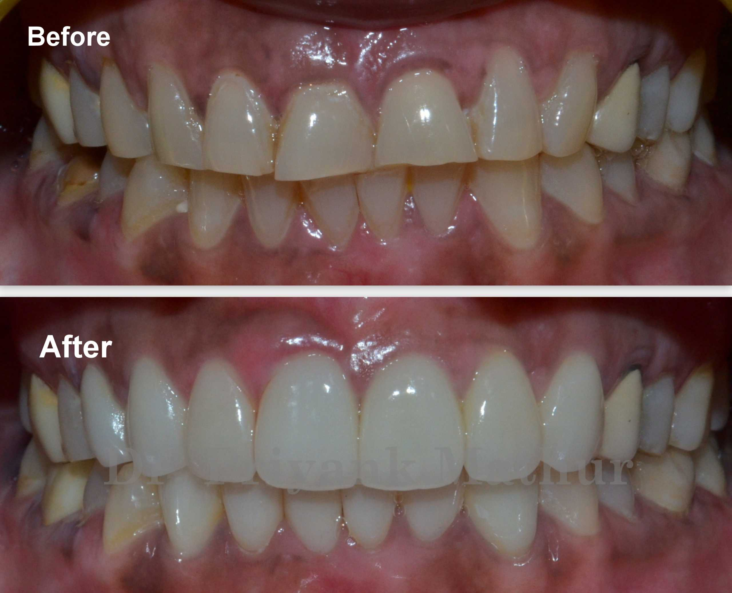 Dental crowns in Pune, India
