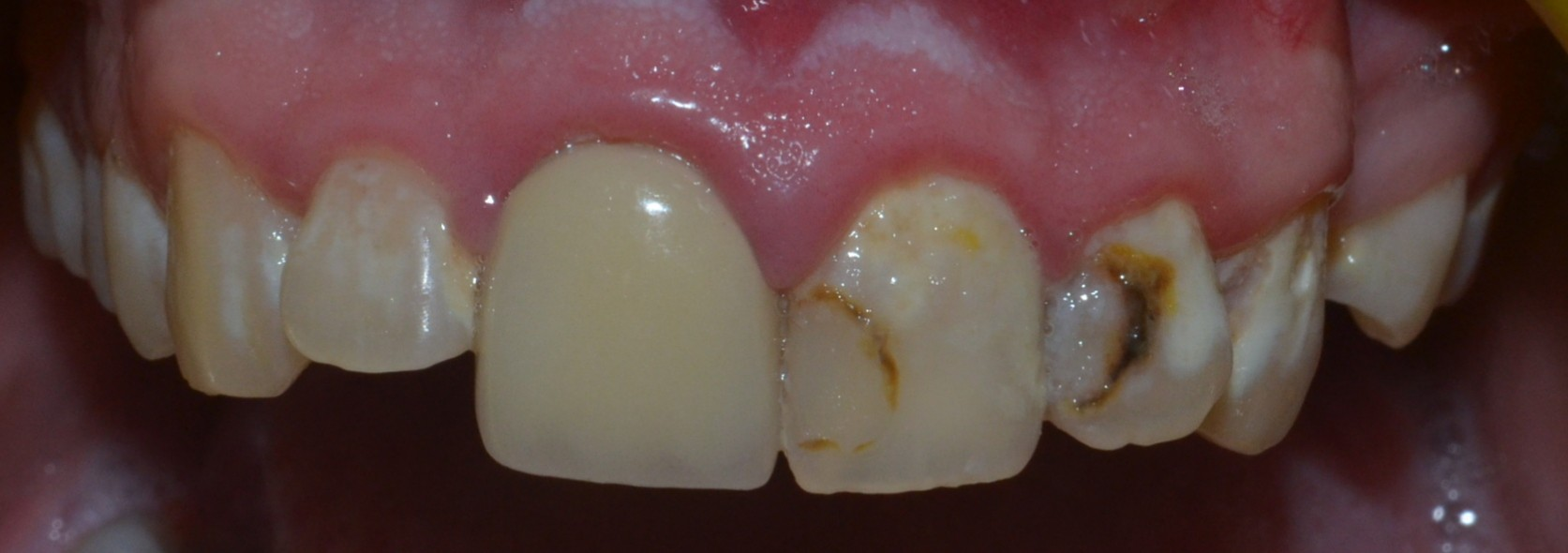 decayed discoloured teeth