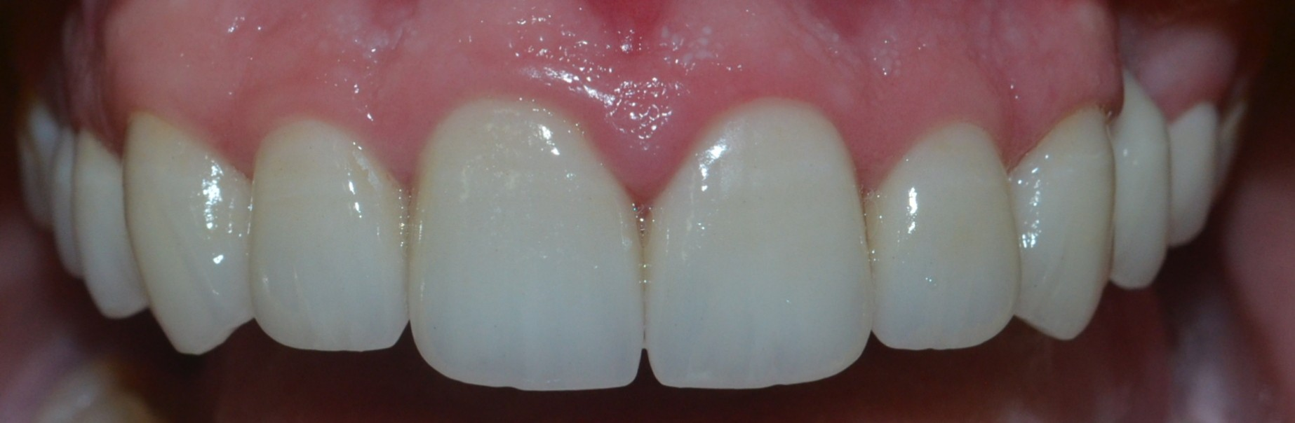 Teeth with Dental Crowns in Pune, India