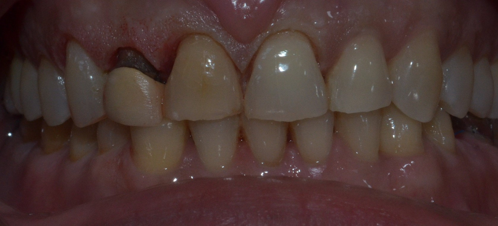 After laser gum correction