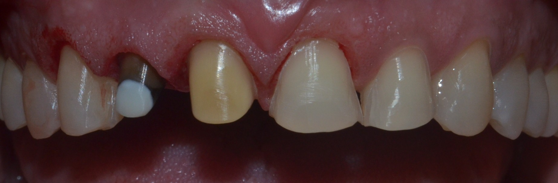 After teeth preparation