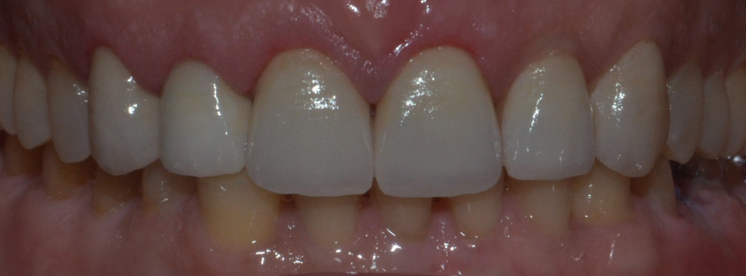 Smile Makeover with Emax crowns & veneer