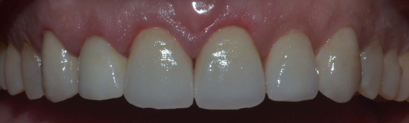 upper teeth emax crowns & veneers