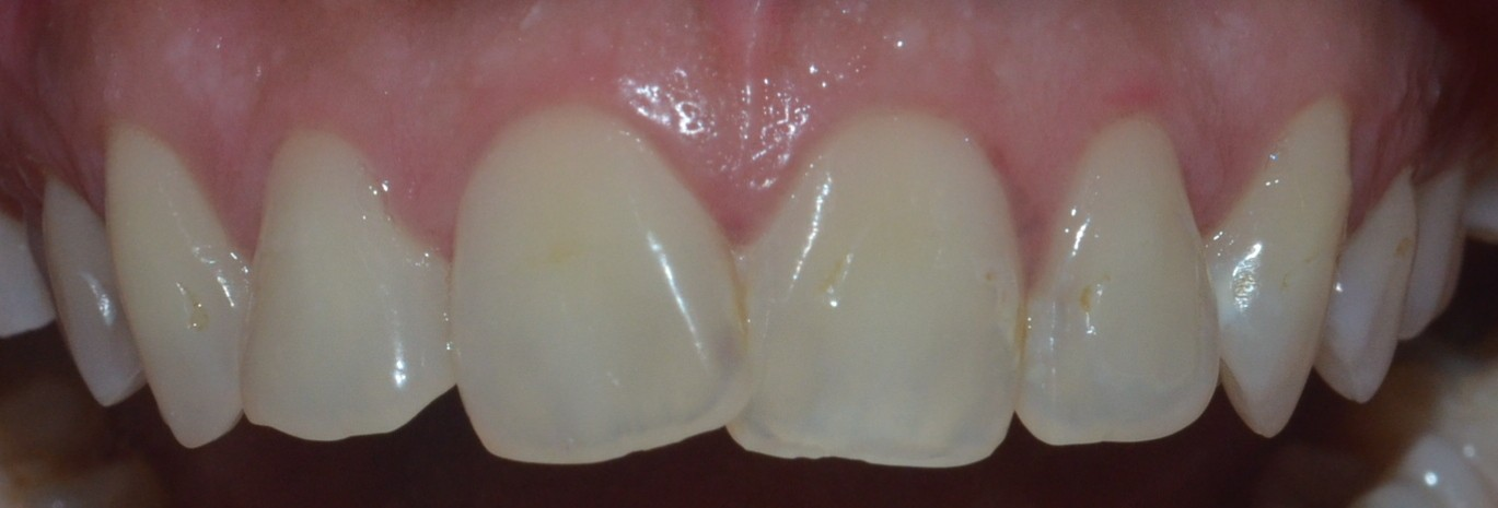 Misshaped & misaligned teeth