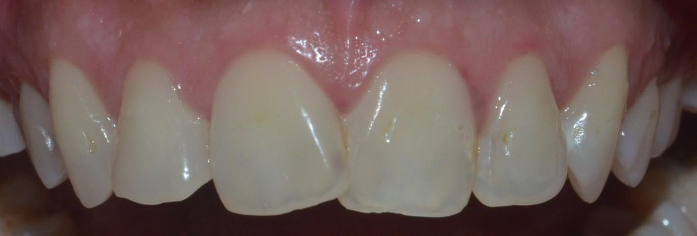 Misshaped & misaligned teeth