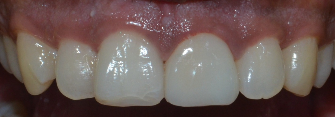 Dental crown fro a fractured tooth