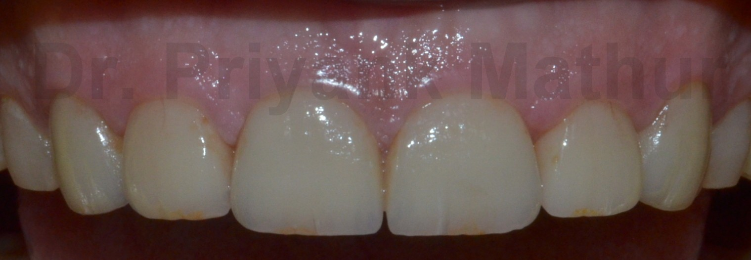 Dental crowns to repair wear & tear