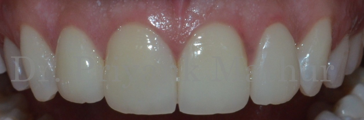 Dental crowns to treat misshaped & misaligned teeth