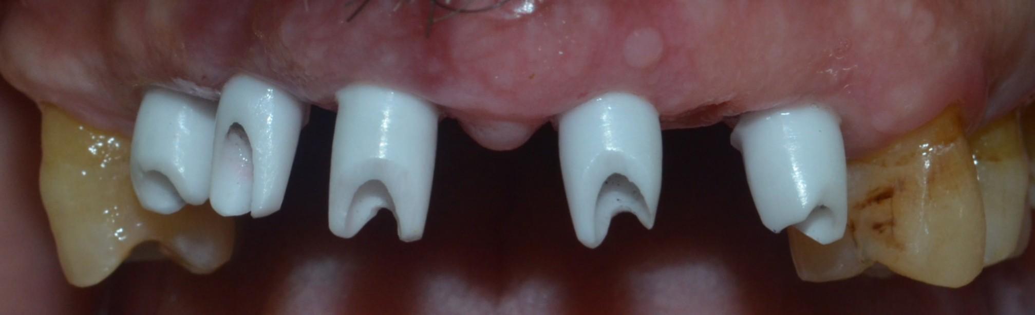 zirconia abutments on implants