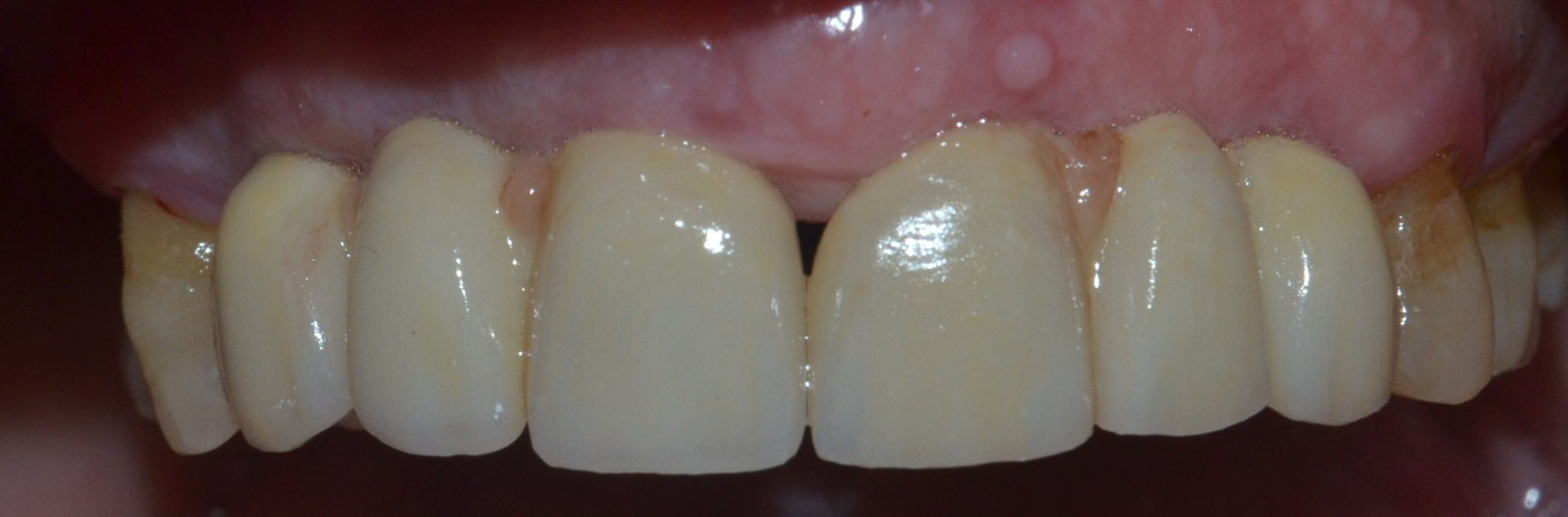 Crowns on dental implants