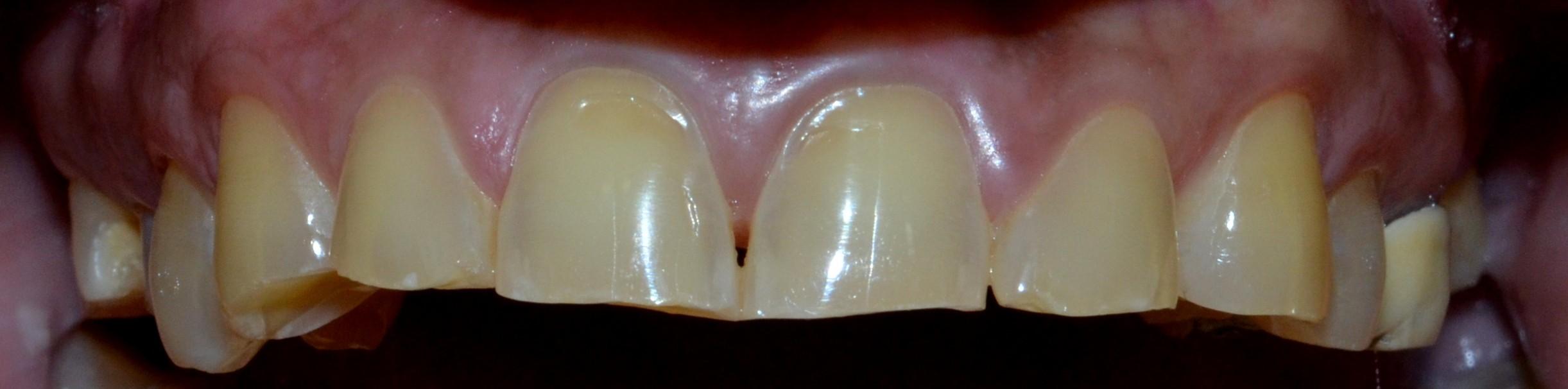 Before (upper teeth)
