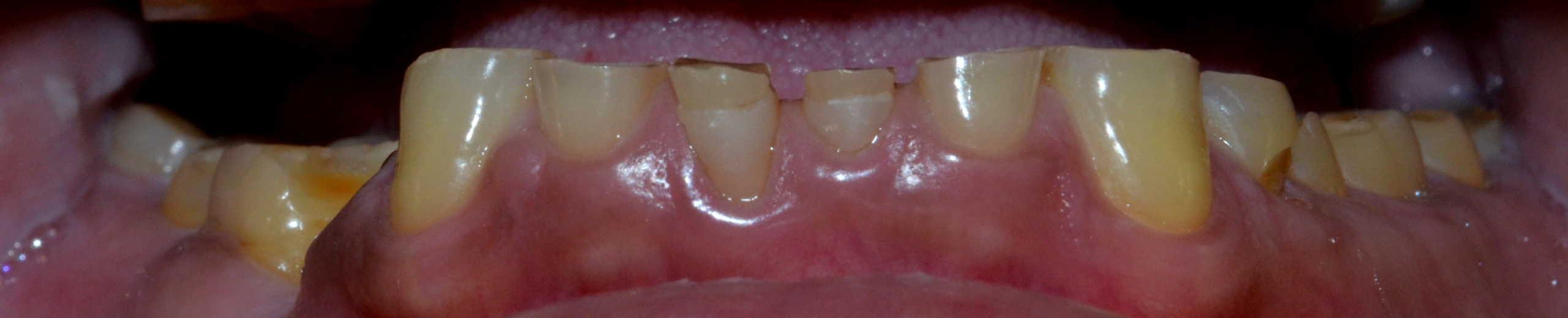 Before (lower teeth)