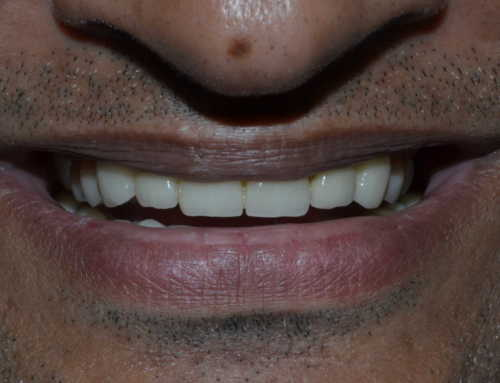 The experience of a full mouth rehabilitation process at Smilekraft Dentistry