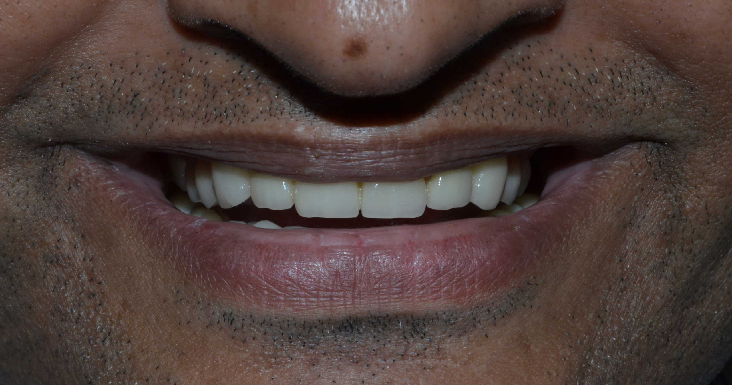 full mouth rehabilitation in Pune, India