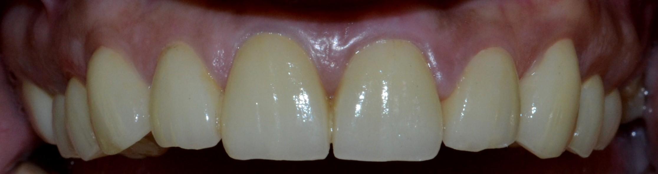 Final Top Teeth