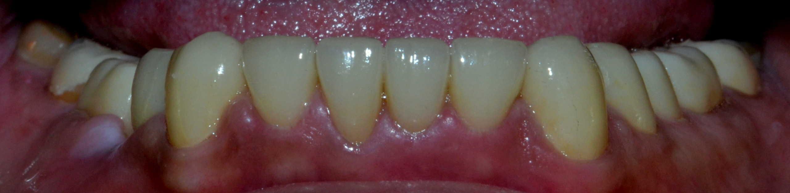Final Lower teeth