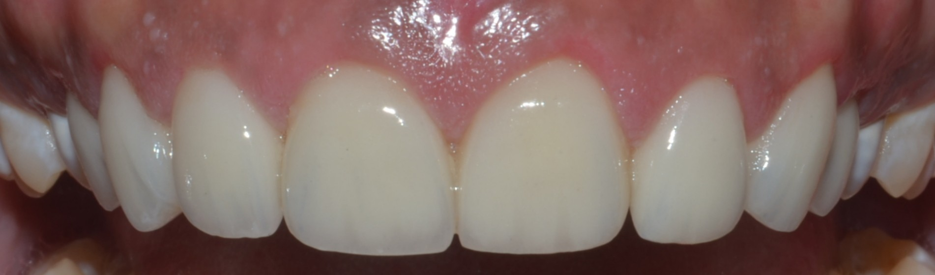 dental crowns for discoloured teeth
