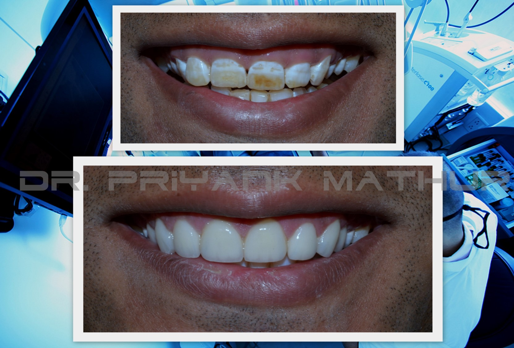 smile designing in India