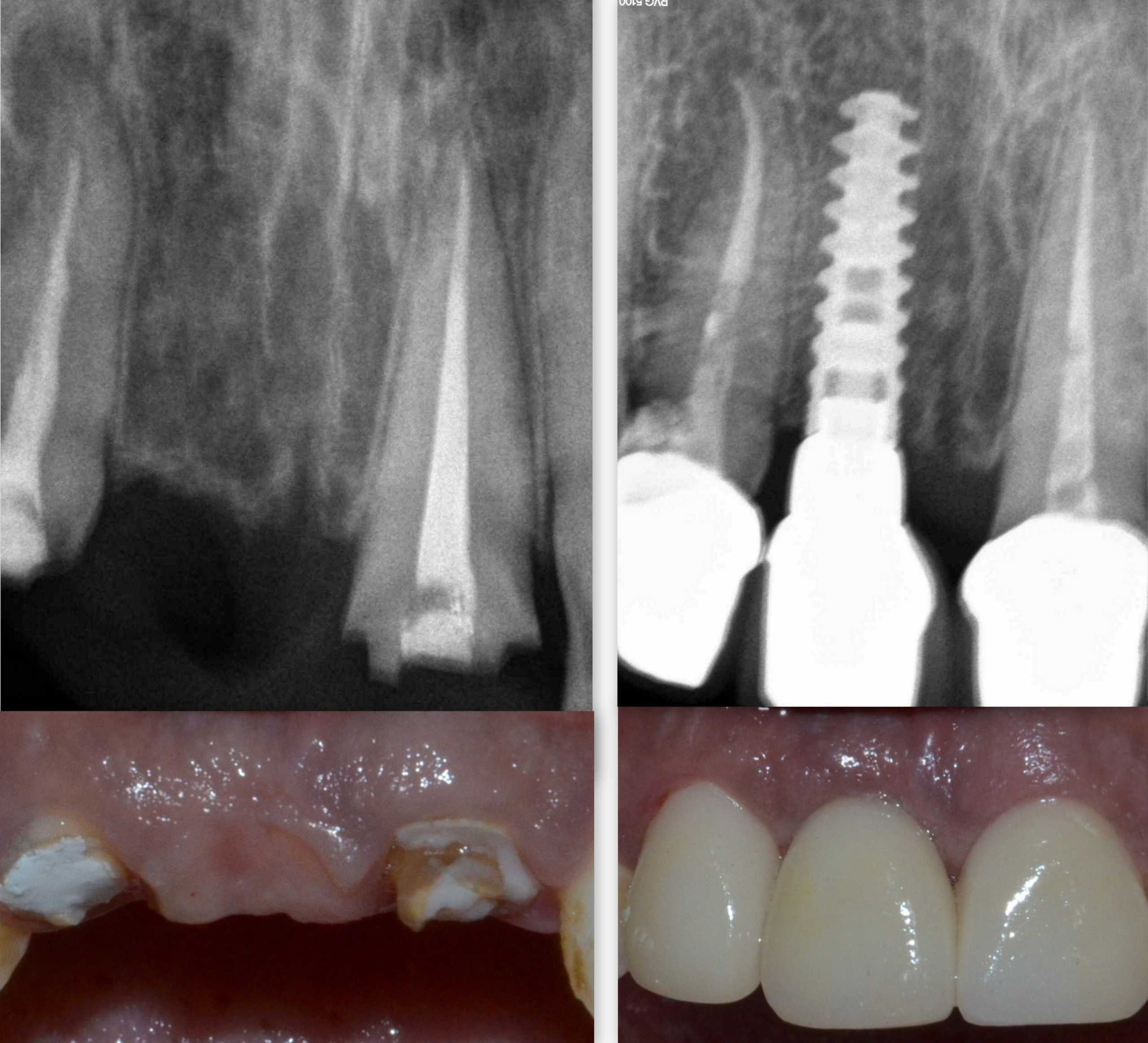 Front Tooth Dental Implant