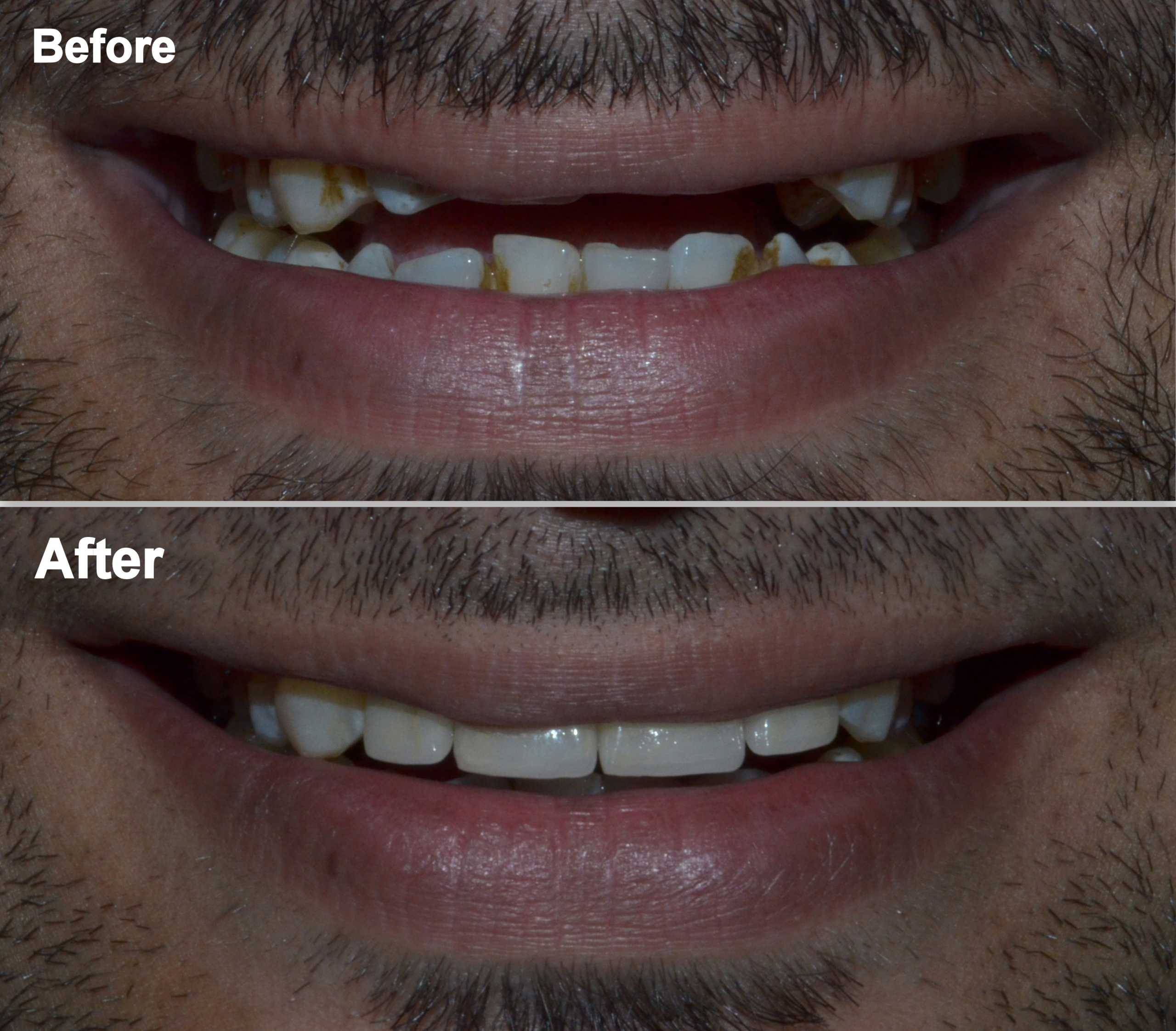 dental crowns for smile improvement