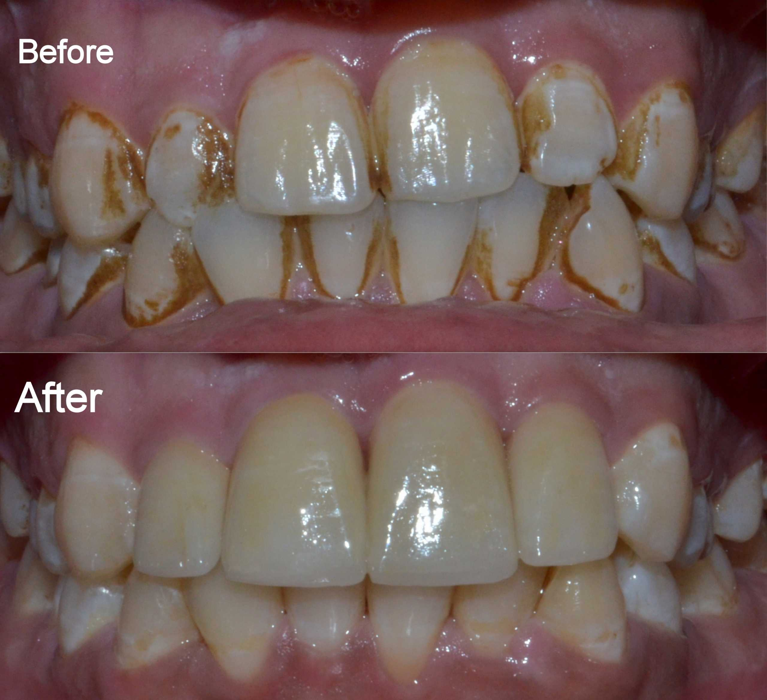 dental crowns to correct bite and increase size of teeth