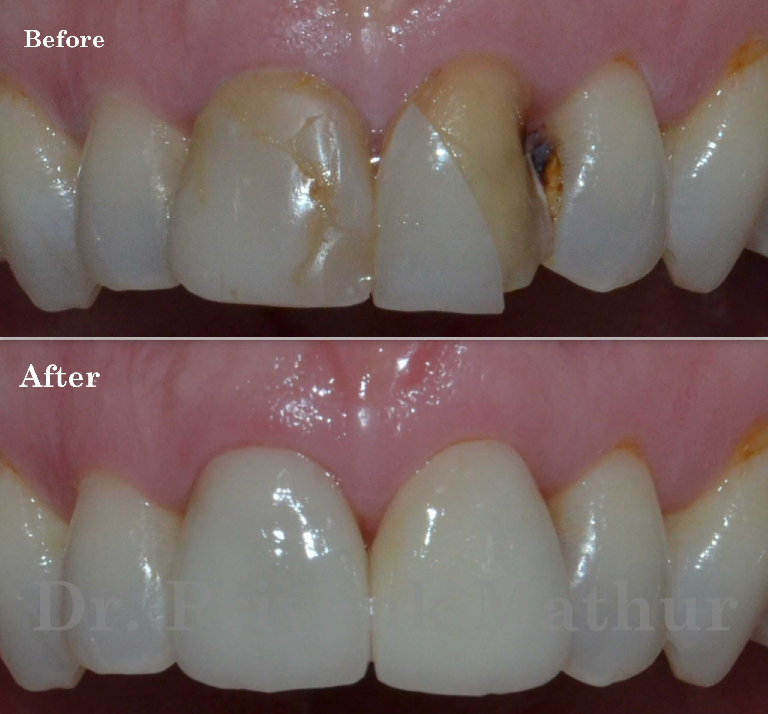 Dental crown to repair an old fractured cap