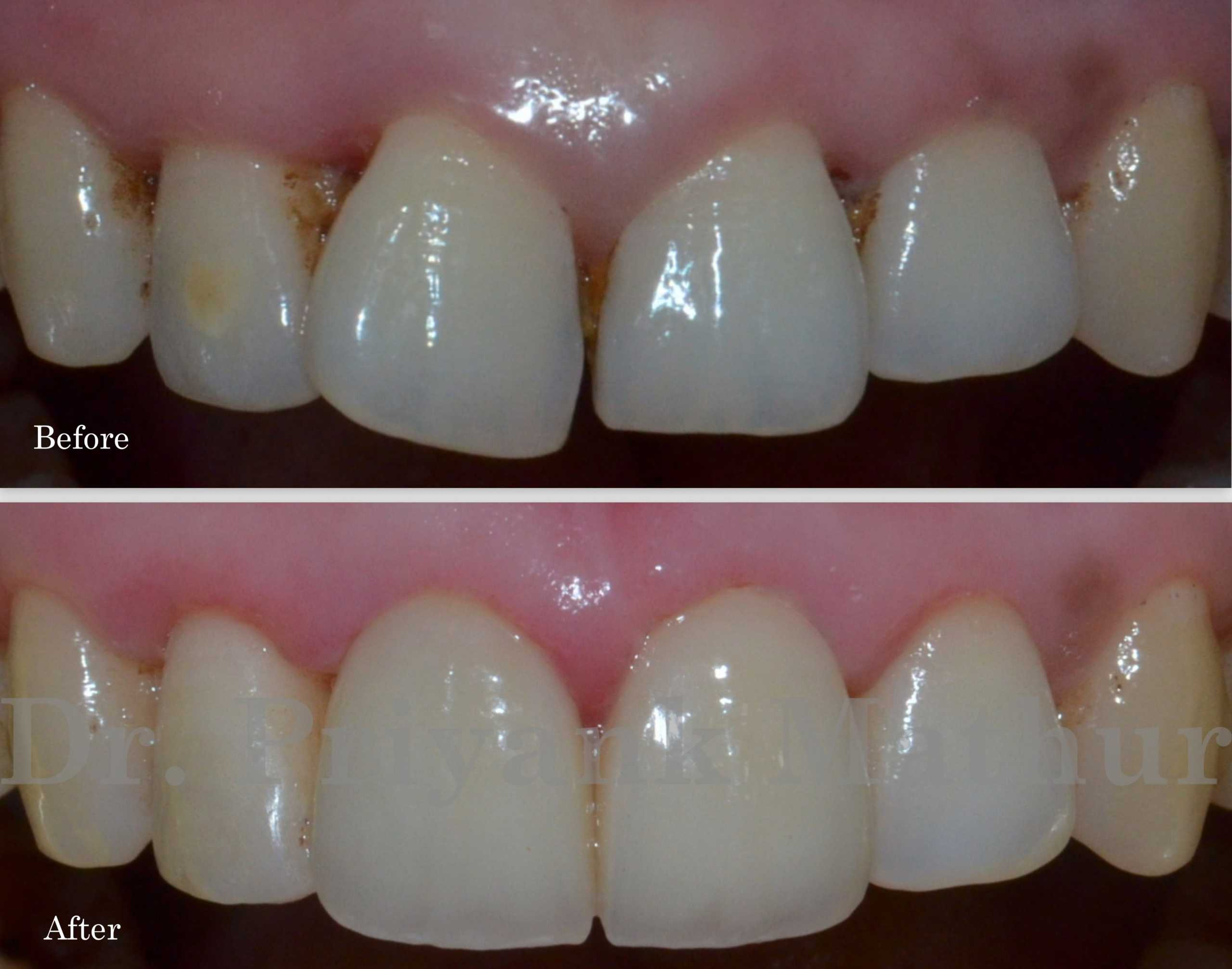 dental crown for wrongly positioned tooth