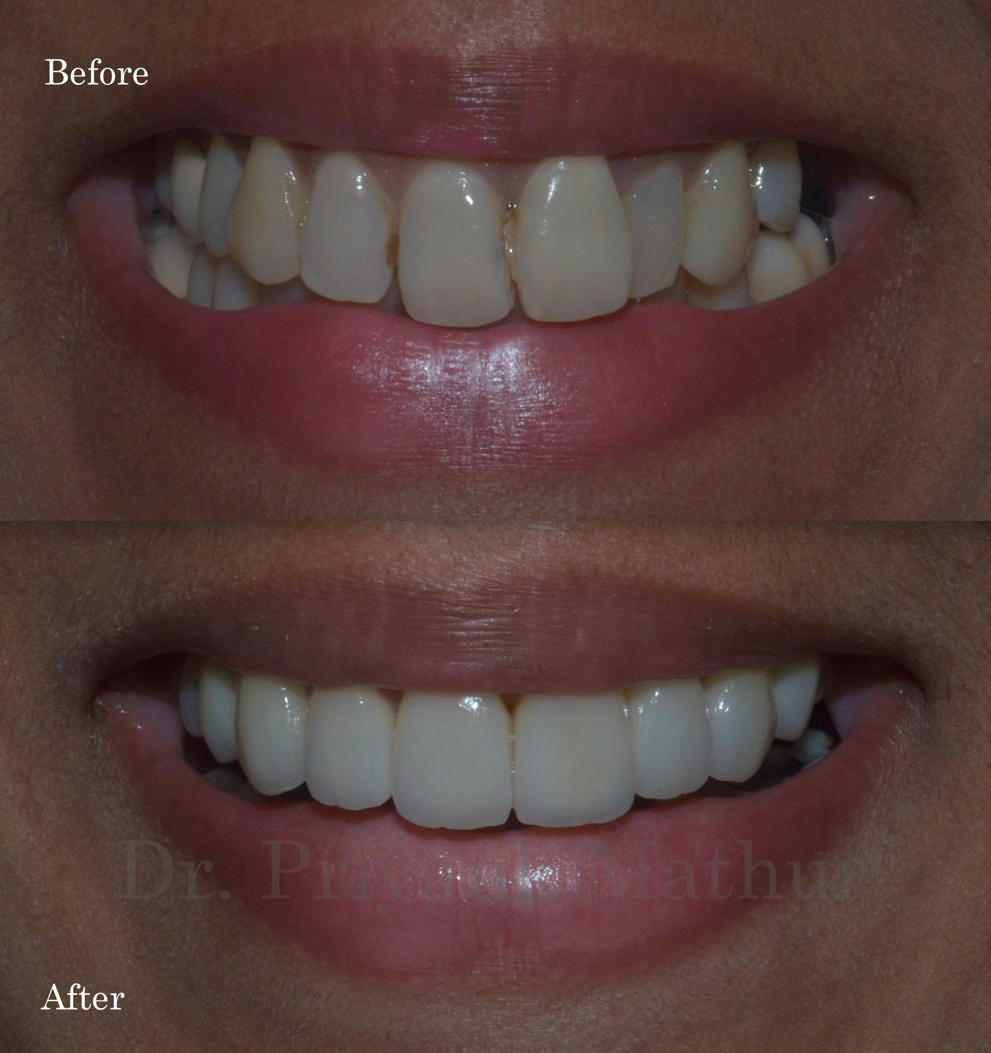 Porcelain veneers to align and brighten teeth