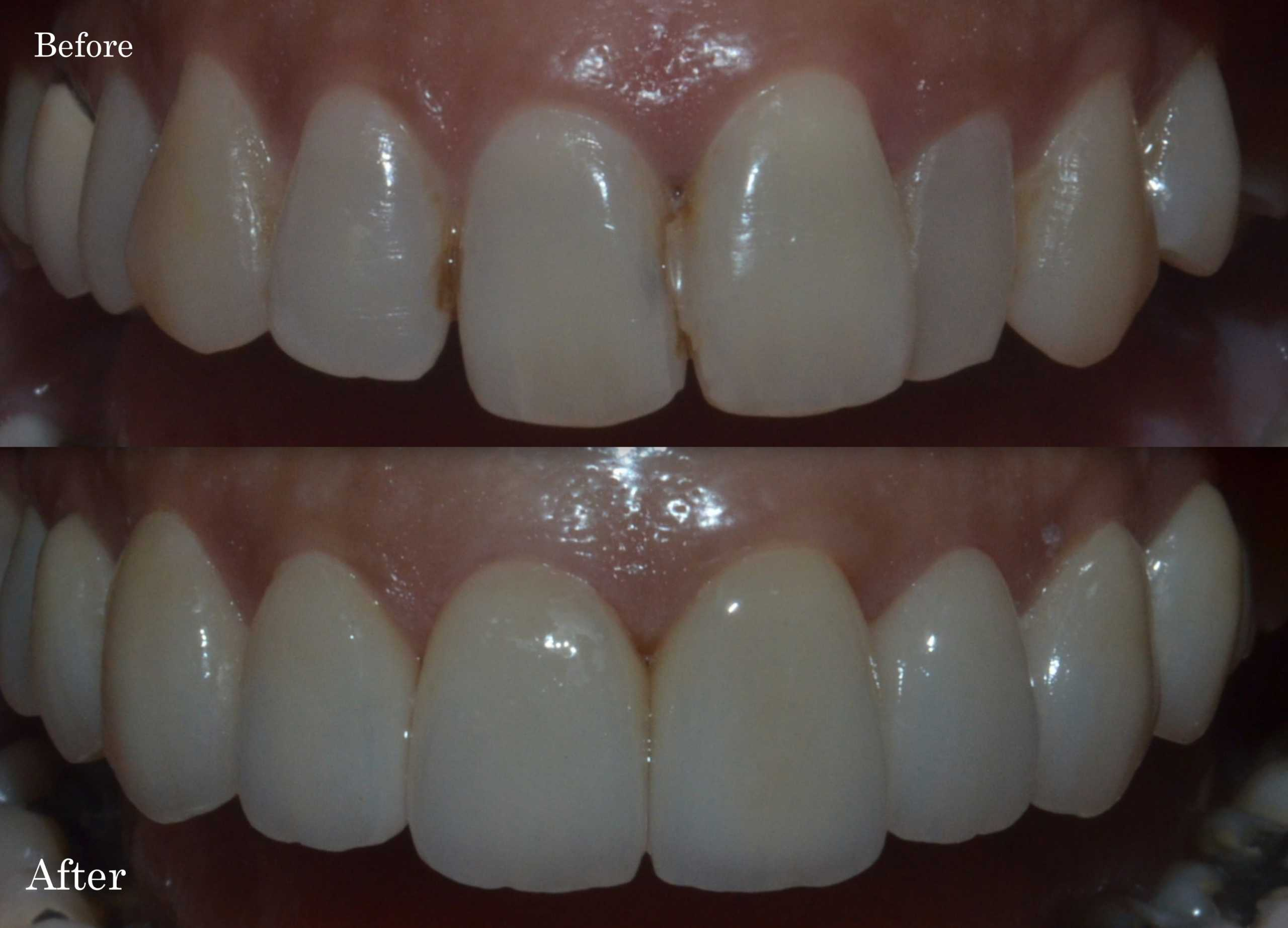 Porcelain veneers to align and make teeth cavity free