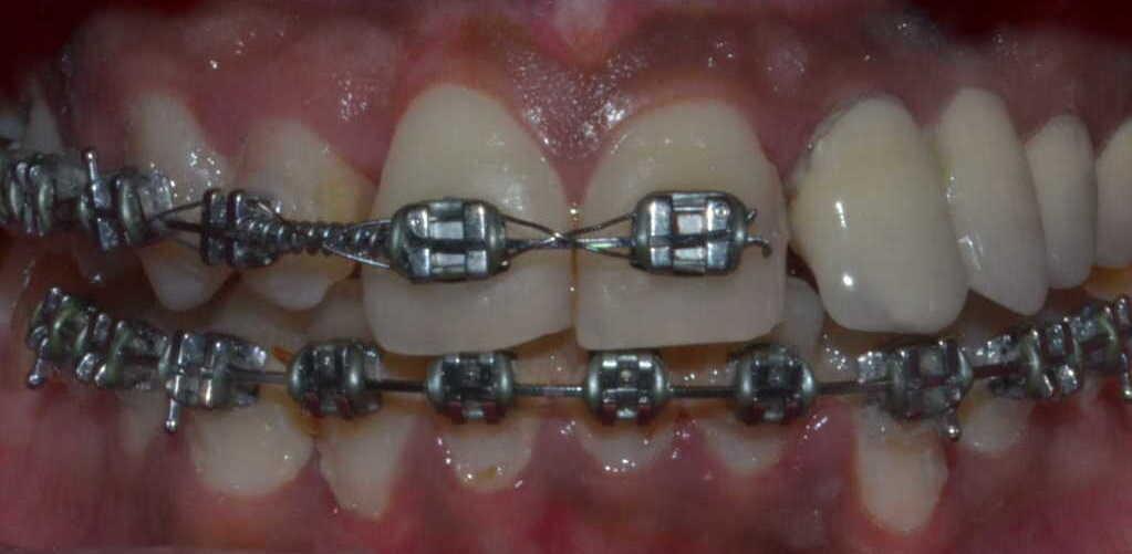 Conventional Metal Braces